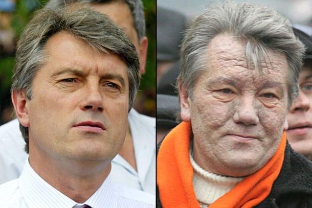 UKRAINE Viktor Iouchtchenko, l'ancien président Ukrainien avant et après son empoisonnement à la dioxine d6-1-610x407