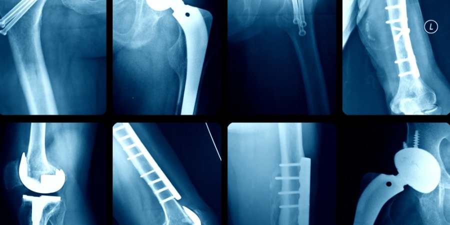 implant-files-scandale-sanitaire-protheses-implants